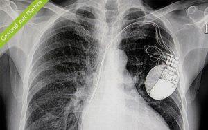Röntgenbild mit Herzschrittmacher