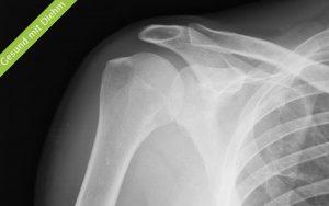 Ultraschallbild einer Schulter